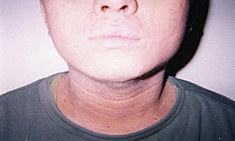 首にアトピーが発症して深いシワができている