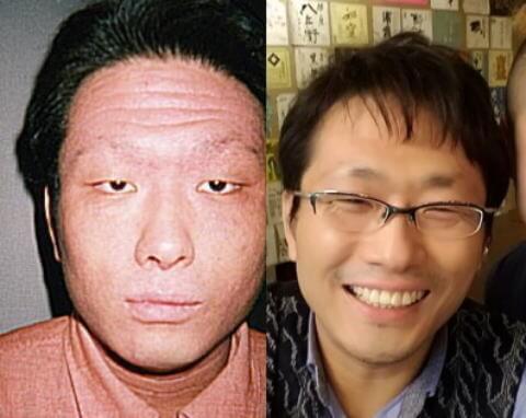 左側が顔にアトピーがあった当時、右側が治った後の写真