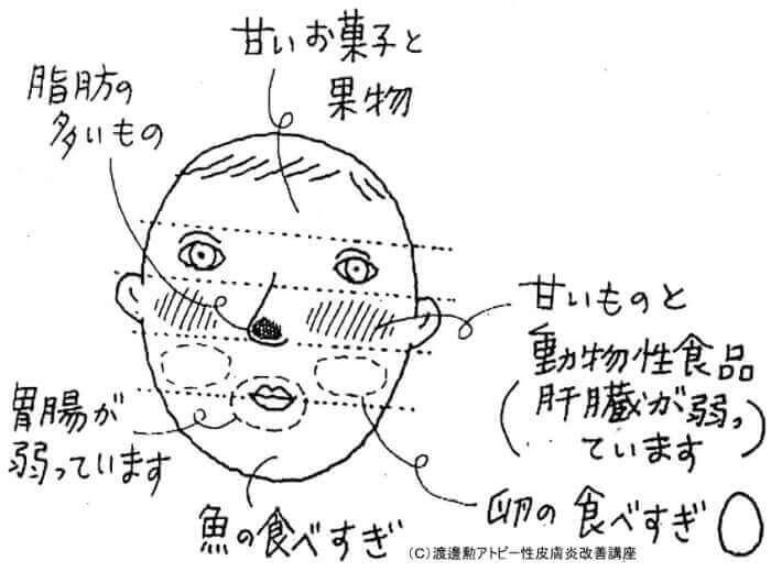 顔の部位別の湿疹と食事の関係